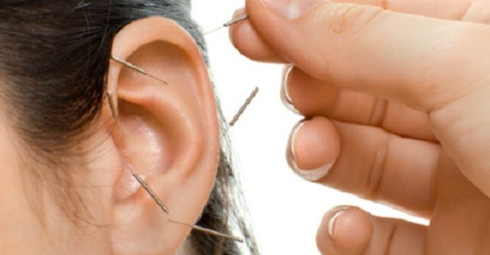 Auriculothérapie, à l'oreille de votre corps