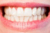 Les dents miroir de notre santé